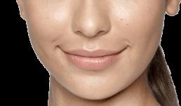 Restylane Fillers omaha dermatology