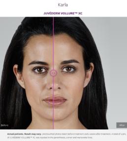 JUVÉDERM VOLLUREXC dermatology Omaha