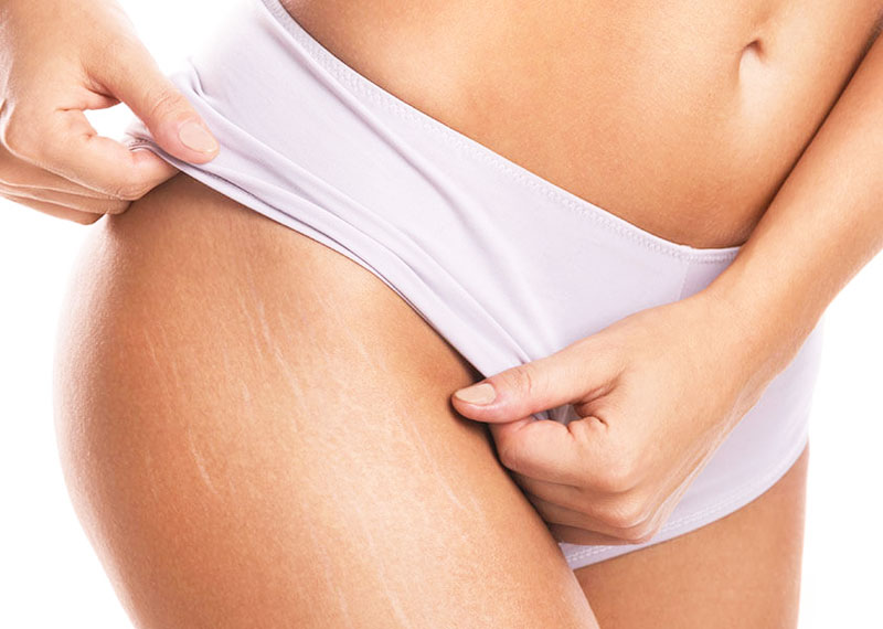 Stretch marks laser treatment omaha