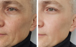 Fillers Treatment omaha dermatologists