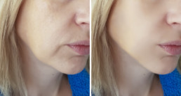 JUVÉDERM® Fillers Treatment dermatology treatment omaha