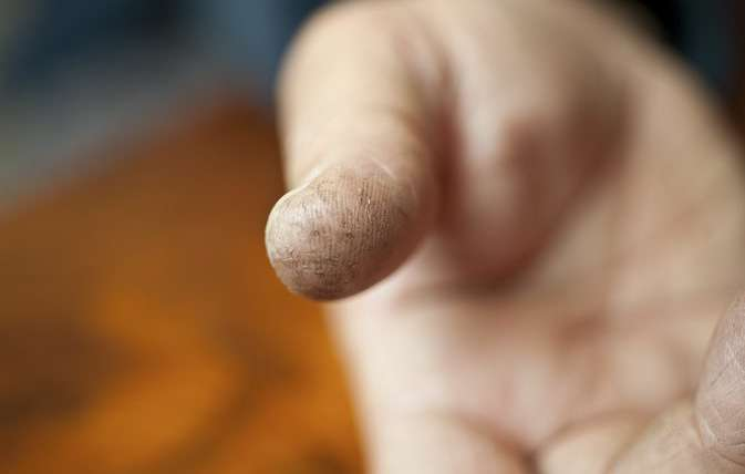 Splitting Fingertips Skin Fissures