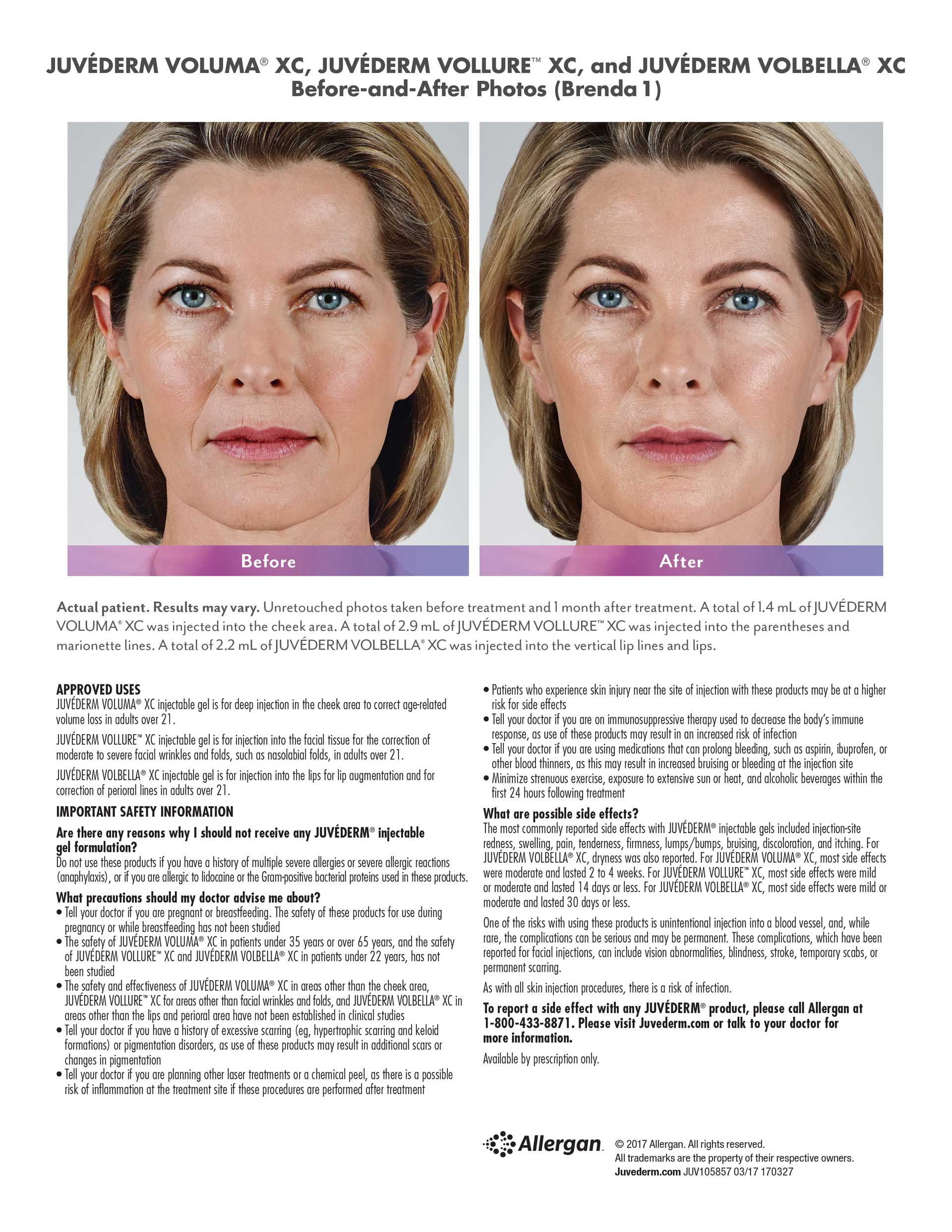 Cosmetic Fillers | Advanced Dermatology of the Midlands | Omaha