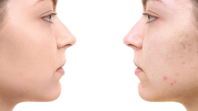 Acne Dark Spots Treatments