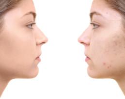 Acne Dark Spots Treatments dermatology Omaha