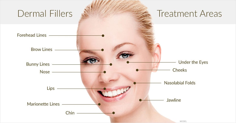 Cosmetic Fillers Advanced Dermatology of the Midlands