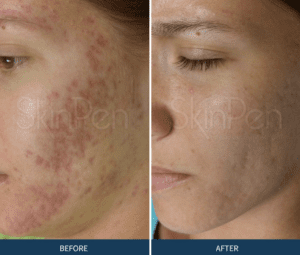 Laser Treatment for Acne Scarring | Advanced Dermatology Midlands