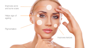 chemical peels treatment Omaha