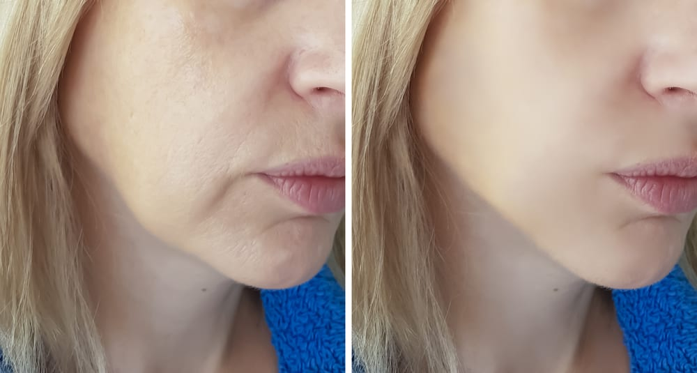 Juvederm Fillers Before and After
