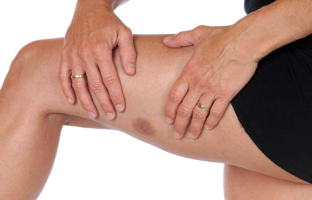 Easy Bruising & Thin Skin