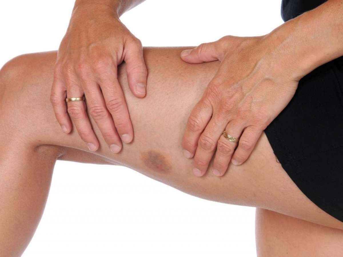 Easy Bruising Thin Skin Best Dermatology Omaha Council Bluffs