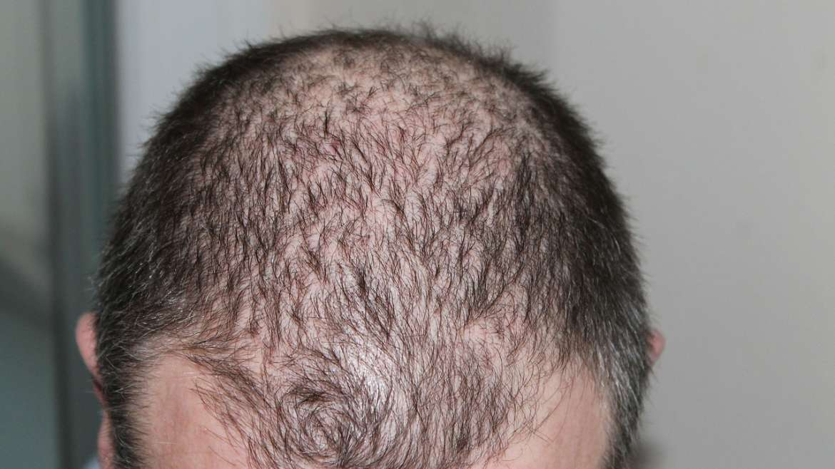 Significant Hair Loss and Thinning