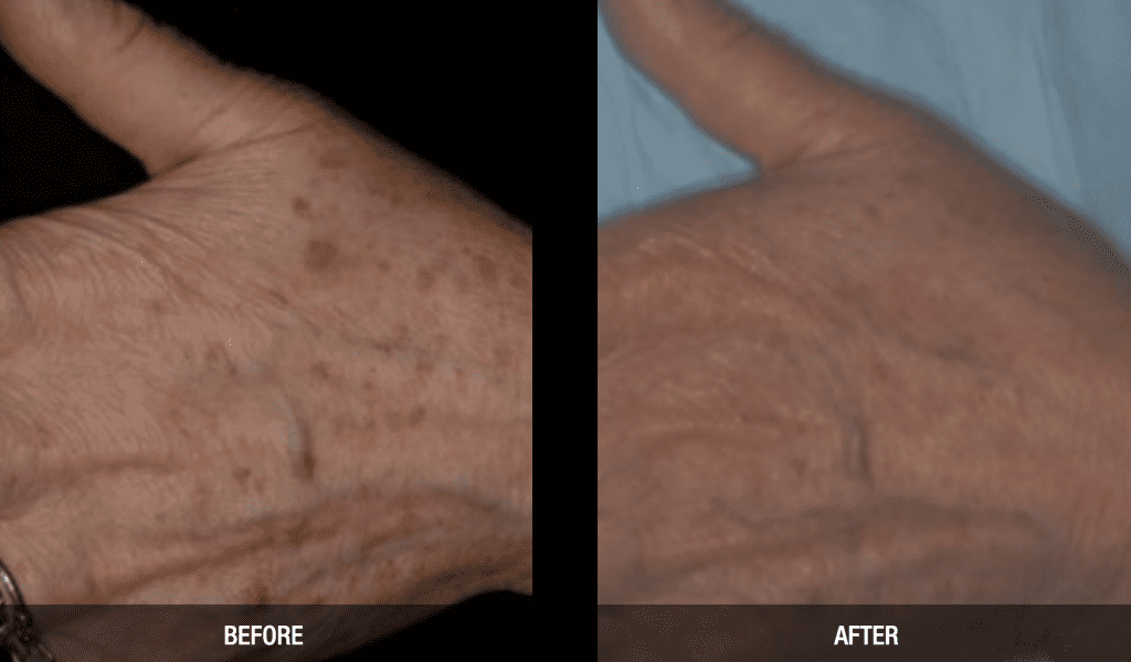 Vbeam Perfecta Vascular Laser before and after