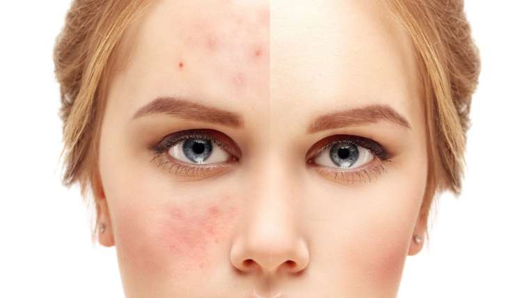 Acne Treatment Updates