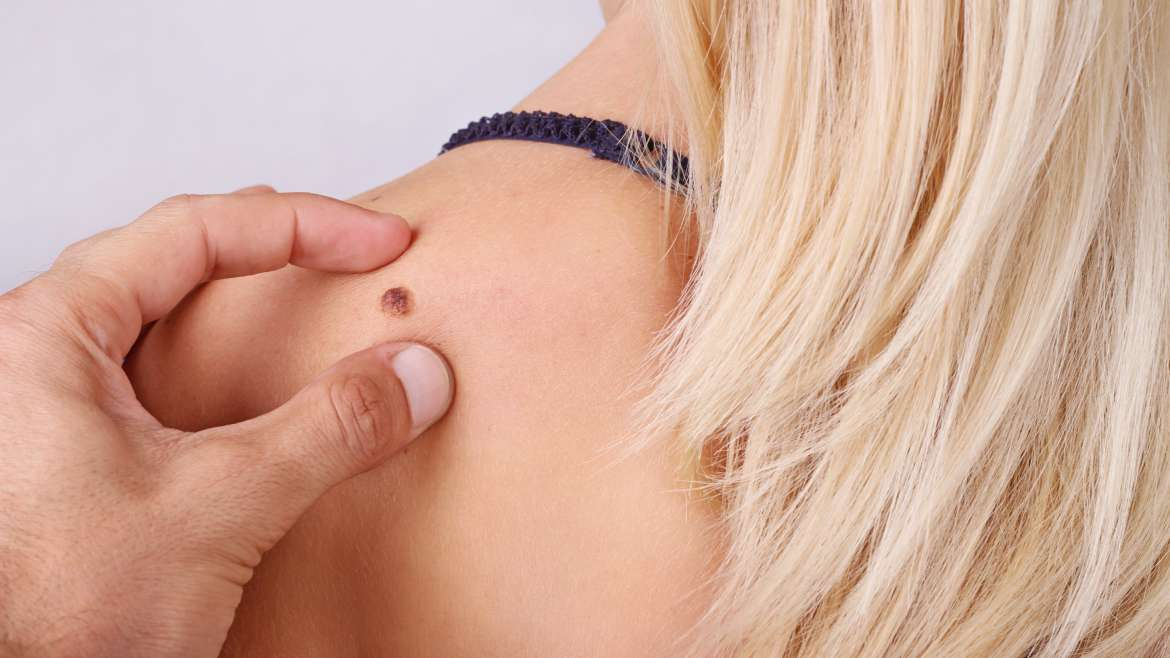 Top Ten Common Skin Spots