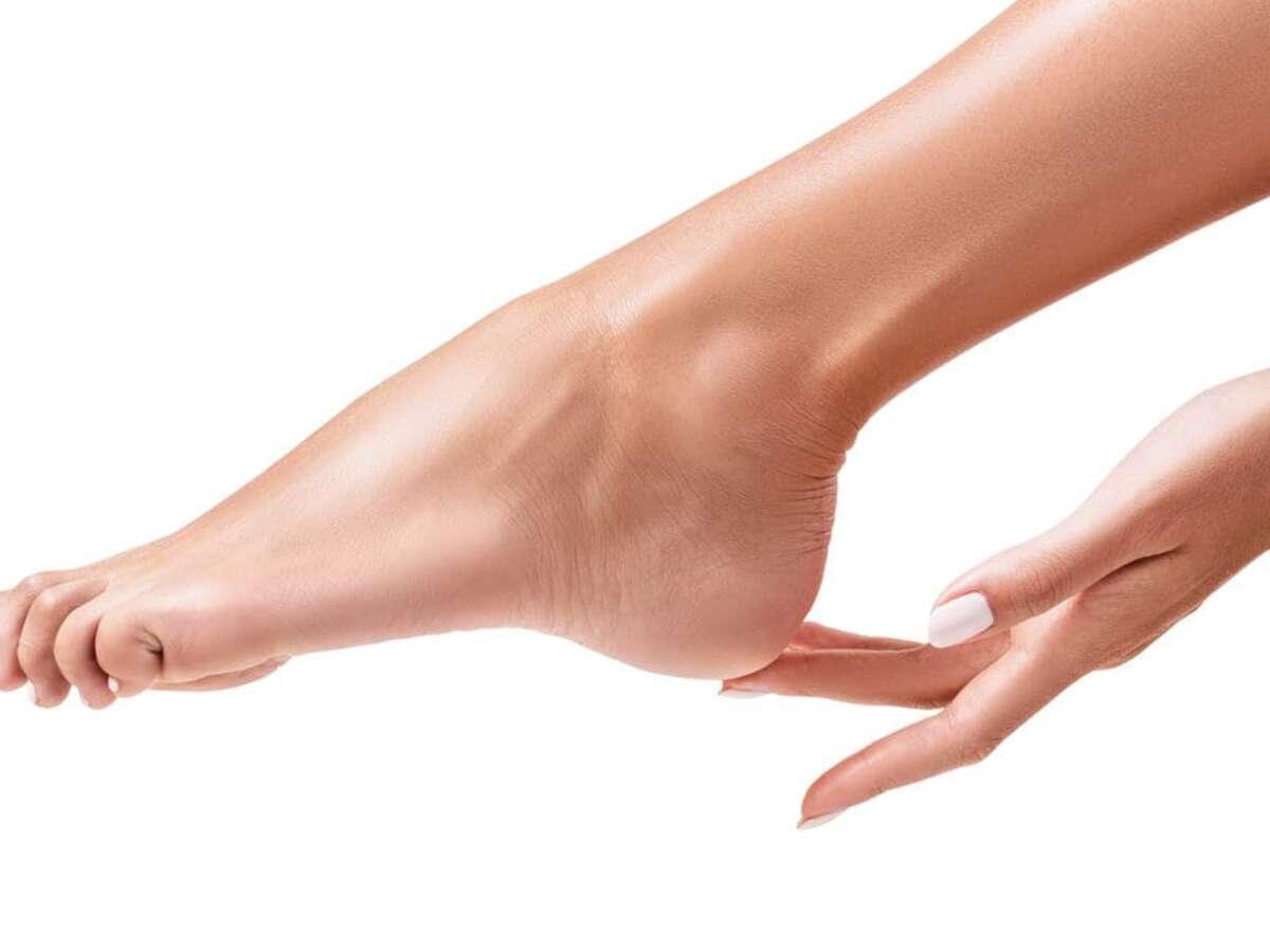 foot wart vs callus
