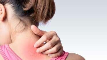 Skin Itching & Scratching