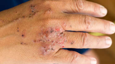 Allergic Contact Dermatitis and Patch Testing