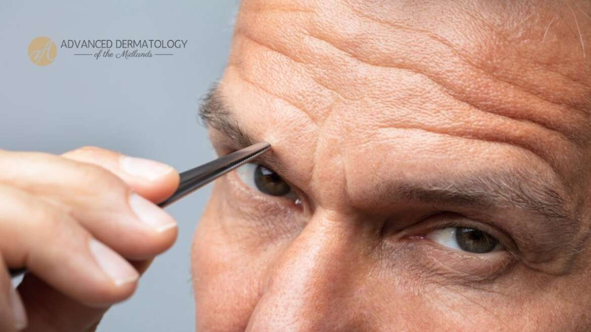 Unwanted Hair Growth and Removal