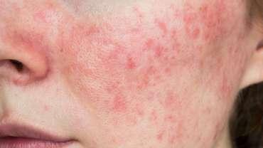 Minocycline for Acne & Rosacea