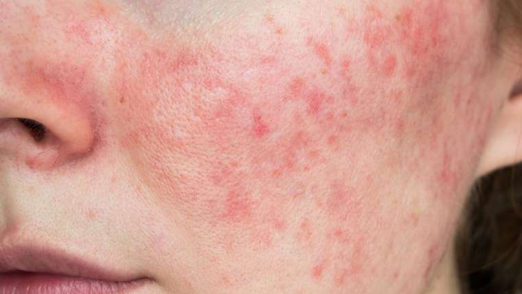 Minocycline for Acne & Rosacea